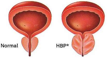 Comparación próstata normal y hbp
