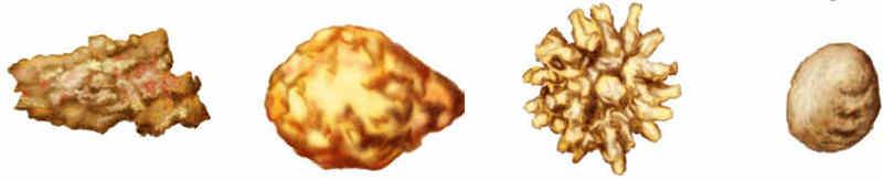 Tipos de piedras en el riñón