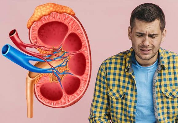 Cólico nefrítico síntomas, duración, tratamiento y que tomar para evitarlo